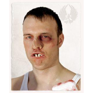 Zęby boksera
