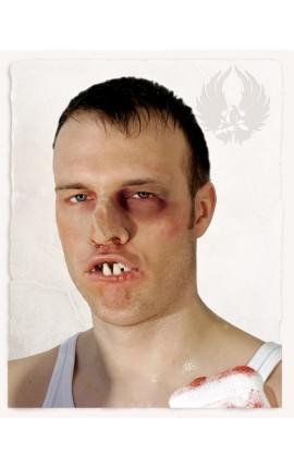 Boxer Teeth