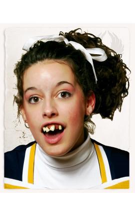 Cheerleader Teeth